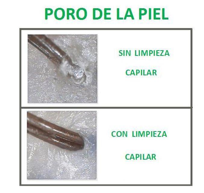 Las limpiezas capilares